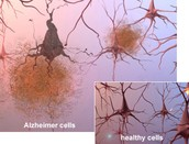 Alzheimer's Cells v. Healthy Cells