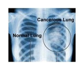 Normal Lungs vs. Cancerous Lungs