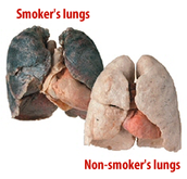 Lungs of a smoker.