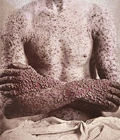 Effects of Smallpox