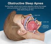 Obstructive sleep apnia