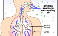 Inhaled Anthax