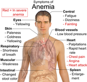 Anemia: condition in which the blood doesn't have enough healthy red blood cells
