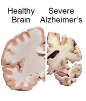 Alzheimer's disease is an irreversible, progressive brain disorder that slowly destroys memory and thinking skills, and eventually the ability to carry out the simplest tasks.