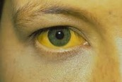 Yellow eye