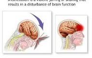 A description and visual picture of a concussion