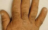 enlargement of hands,feet,nose etc