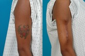 Surgicaly removing tattoos
