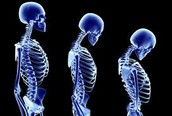 Affect of Osteoporosis on Spine
