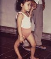 A little girl displaying deformity due to poliio