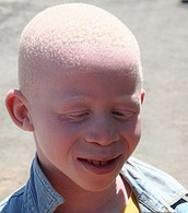 African boy with Albinism