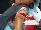 Leg kickback injury