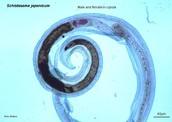Schistosomiasis Description