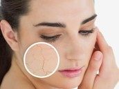 Dry, Acne Prone Skin