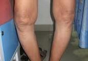 Knee Arthritis can Limit your activities