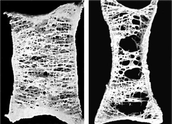 Osteoporosis comparison