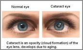 Cataract Facts