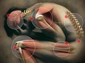 How Common Is Fibormyalgia?