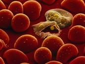pictures of malaria