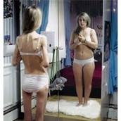 Anorexia nervosa & Bulimia