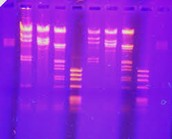Coming Up Next... DNA and Biotechnology!