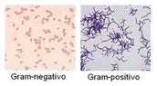 bacterias gram negativas y gram positivas