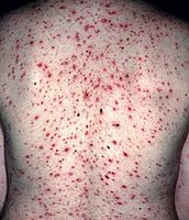 Elderly with chickenpox