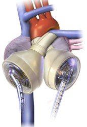 The human heart or artificial heart. (compare and contrast)