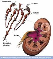 Glomeruli Nephritis