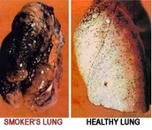 Effects of Smoking on Lungs