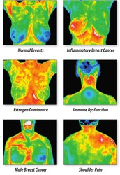 Your Thermal Breast Health Screening Reminder