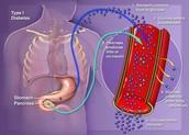 Background of Type 1 Diabetes