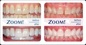 ZOOM WHITENING option is now available!