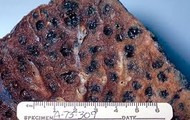 Lung with Emphysema
