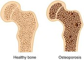 Difference between a Healthy Bone and an Osteoporotic Bone