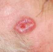 Basal Cell Sarcoma