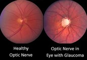 What are the causes and complications of Glaucoma?