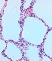 Epithelial tissue function