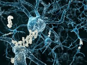 Nerve cells with protein build up