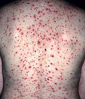 Sever case of chicken pox