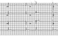 ECG Test Results