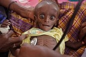 A starving child at the doctors