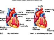 dilated aorta
