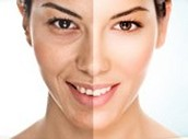 Ask About Juvederm VOLUMA XC today!