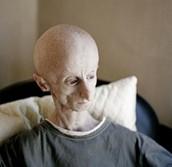Progeria Cure and Treatment