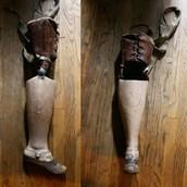 The first nonlocking below-knee prostetic