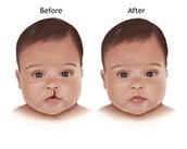 Reconstructional surgery