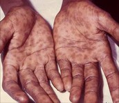 Syphilis on the hands