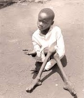 Orphans in Sub-Saharan Africa as a result of AIDS