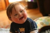 What happens to a person with down syndrome